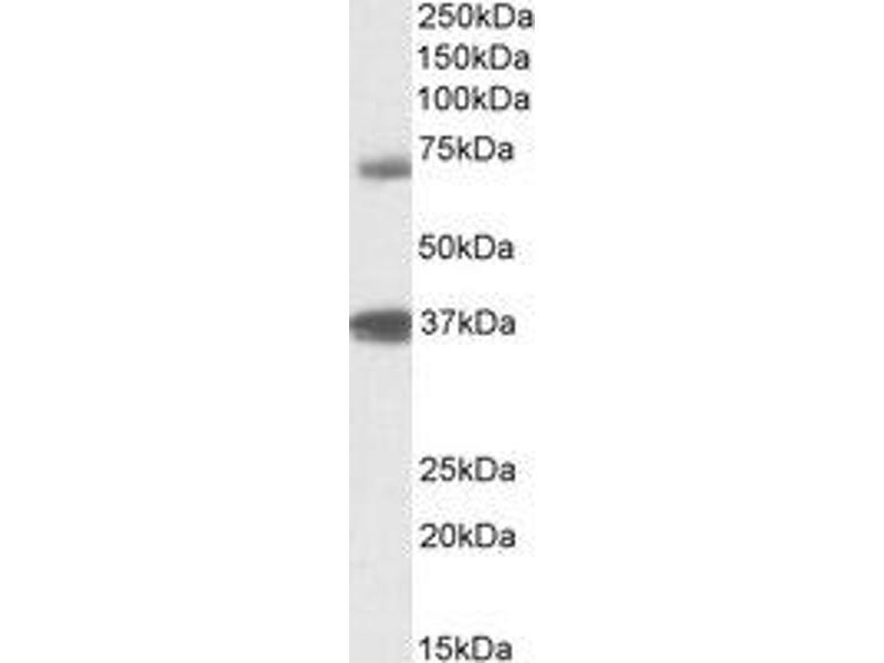 Western Blotting (WB) image for anti-TRIM29 antibody (Tripartite Motif Containing 29) (Internal Region) (ABIN2464594)