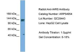 Image no. 2 for anti-Isoleucyl-tRNA Synthetase (IARS) (Middle Region) antibody (ABIN2785974)