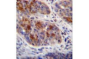 Image no. 2 for anti-HCLS1 Associated Protein X-1 (HAX1) (AA 160-190), (C-Term) antibody (ABIN952684)