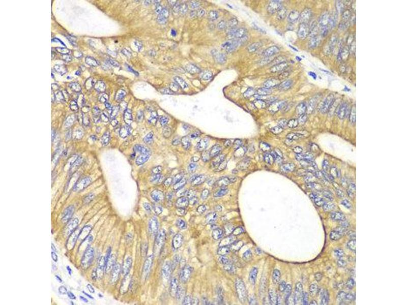 Immunohistochemistry (IHC) image for anti-Vascular Endothelial Growth Factor B (VEGFB) antibody (ABIN1875323)