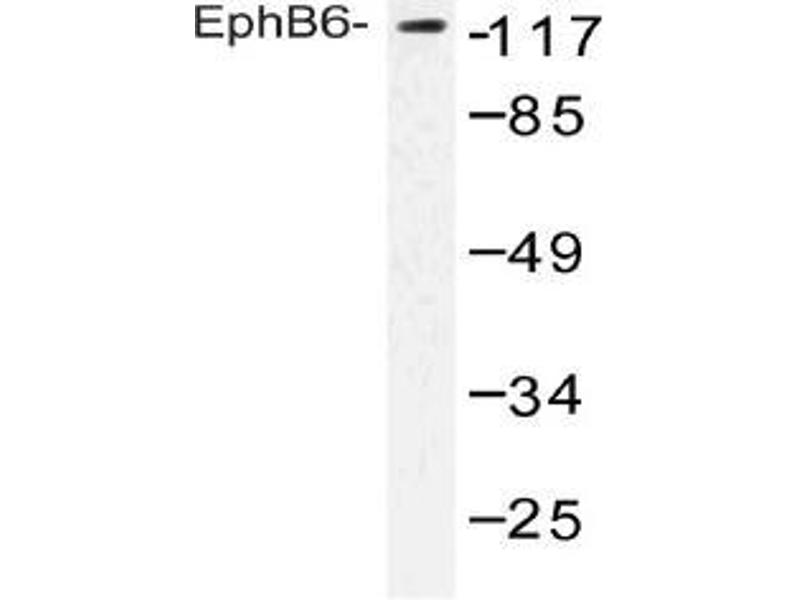 Western Blotting (WB) image for anti-EPH Receptor B6 Antikörper (EPHB6) (ABIN498409)