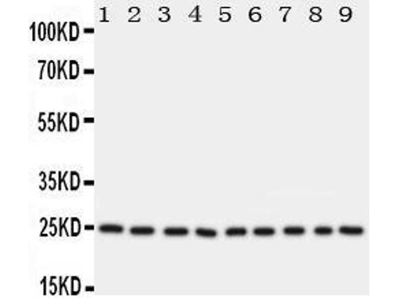 Western Blotting (WB) image for anti-Transcription Factor A, Mitochondrial (TFAM) (AA 227-246), (C-Term) antibody (ABIN3044014)