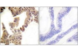 Immunohistochemistry (IHC) image for anti-Caspase 2 antibody (Caspase 2, Apoptosis-Related Cysteine Peptidase) (pSer157) (ABIN1531645)