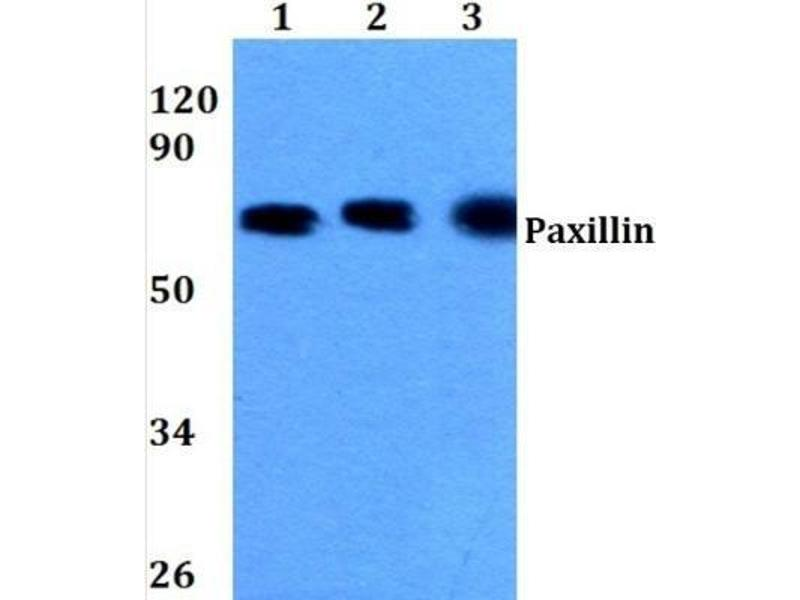 Western Blotting (WB) image for anti-Paxillin (PXN) (N-Term) antibody (ABIN447010)