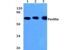 Western Blotting (WB) image for anti-Paxillin antibody (PXN) (N-Term) (ABIN447010)