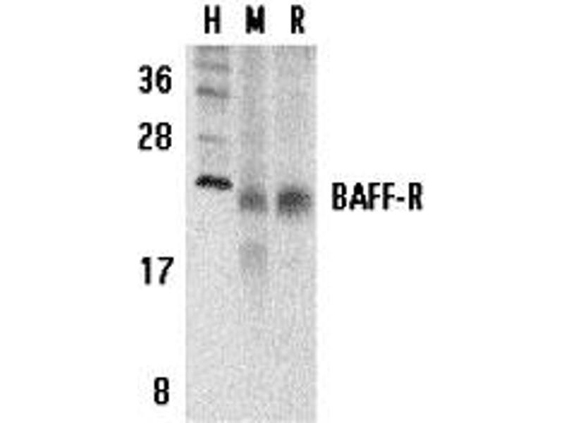 Western Blotting (WB) image for anti-TNFRSF13C antibody (Tumor Necrosis Factor Receptor Superfamily, Member 13C) (C-Term) (ABIN2156037)