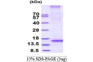 Image no. 1 for Ring Finger Protein 7 (RNF7) (AA 1-113) protein (His tag) (ABIN5853188)