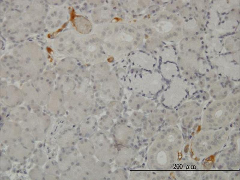 Immunostaining (ISt) image for anti-Complement Component 3 (C3) (AA 1534-1644), (partial) antibody (ABIN560117)