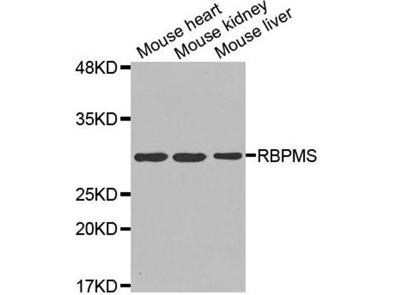 rb4177  splicing rbpms