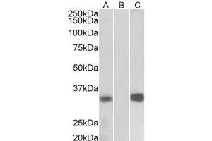 Image no. 1 for anti-Kv Channel Interacting Protein 3, Calsenilin (KCNIP3) (Internal Region) antibody (ABIN5539711)
