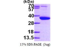 Image no. 1 for Pyrroline-5-Carboxylate Reductase 1 (PYCR1) (AA 1-319) protein (His tag) (ABIN667842)
