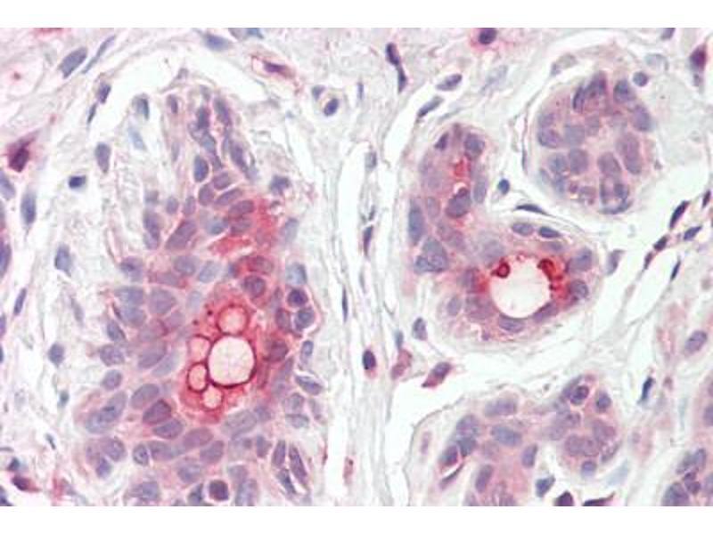 Image no. 1 for anti-ATP-Binding Cassette, Sub-Family C (CFTR/MRP), Member 11 (ABCC11) (Internal Region) antibody (ABIN302164)
