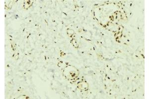 Image no. 1 for anti-SMAD, Mothers Against DPP Homolog 2 (SMAD2) antibody (ABIN6265170)
