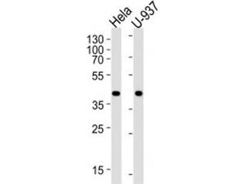Western Blotting (WB) image for anti-Phosphoglycerate Kinase 1 (PGK1) (AA 117-145) antibody (ABIN3032224)