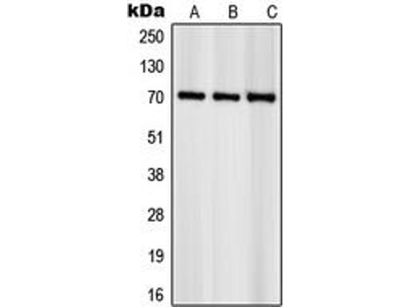 Western Blotting (WB) image for anti-RPS6KB1 antibody (Ribosomal Protein S6 Kinase, 70kDa, Polypeptide 1) (C-Term) (ABIN2705213)