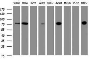 Image no. 3 for anti-Zinc Finger and SCAN Domain Containing 18 (ZSCAN18) antibody (ABIN1501861)
