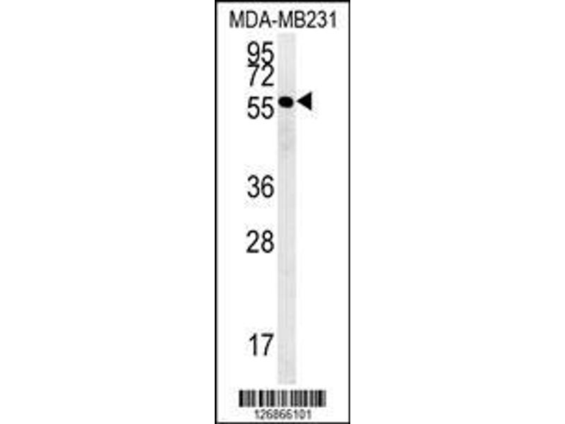 Western Blotting (WB) image for anti-RAB11 Family Interacting Protein 2 (Class I) (RAB11FIP2) (AA 345-374), (Center) antibody (ABIN651666)