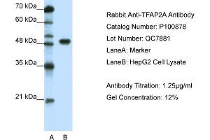 Image no. 2 for anti-Transcription Factor AP-2 alpha (Activating Enhancer Binding Protein 2 Alpha) (TFAP2A) (C-Term) antibody (ABIN2792629)