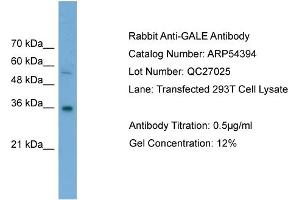 Image no. 2 for anti-UDP-Galactose-4-Epimerase (GALE) (Middle Region) antibody (ABIN2785691)