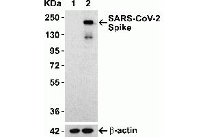 Image no. 3 for anti-SARS-CoV-2 Spike antibody (ABIN6952962)