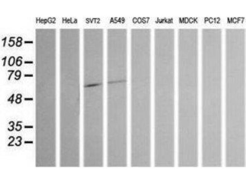 Western Blotting (WB) image for anti-Chromogranin A (CHGA) antibody (ABIN4298554)