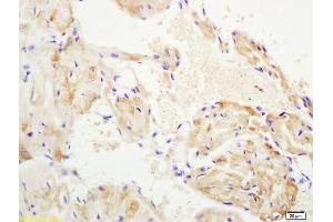 Immunohistochemistry (IHC) image for anti-WNT10B antibody (Wingless-Type MMTV Integration Site Family, Member 10B) (AA 220-270) (ABIN702295)