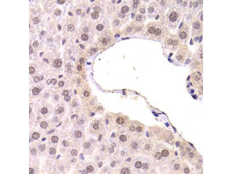Immunohistochemistry (IHC) image for anti-CDKN1A antibody (Cyclin-Dependent Kinase Inhibitor 1A (p21, Cip1)) (ABIN1871748)