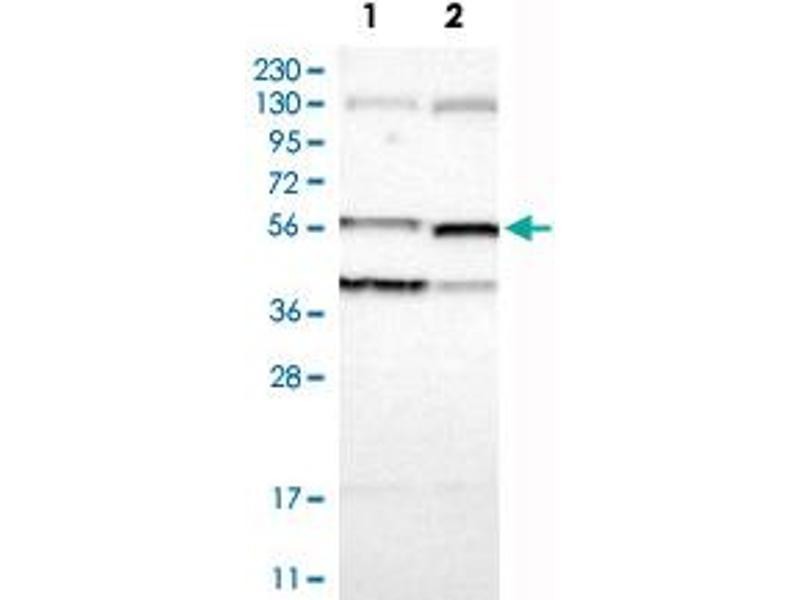 Western Blotting (WB) image for anti-Villin 1 (VIL1) antibody (ABIN5590731)