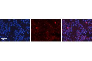 Image no. 6 for anti-Tumor Protein P53 (TP53) (N-Term) antibody (ABIN2779317)