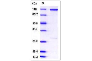 Image no. 1 for Catenin (Cadherin-Associated Protein), beta 1, 88kDa (CTNNB1) (AA 1-781) protein (GST tag,His tag) (ABIN2004177)