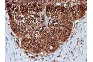 Image no. 6 for anti-Chromosome 1 Open Reading Frame 50 (C1ORF50) antibody (ABIN1497033)