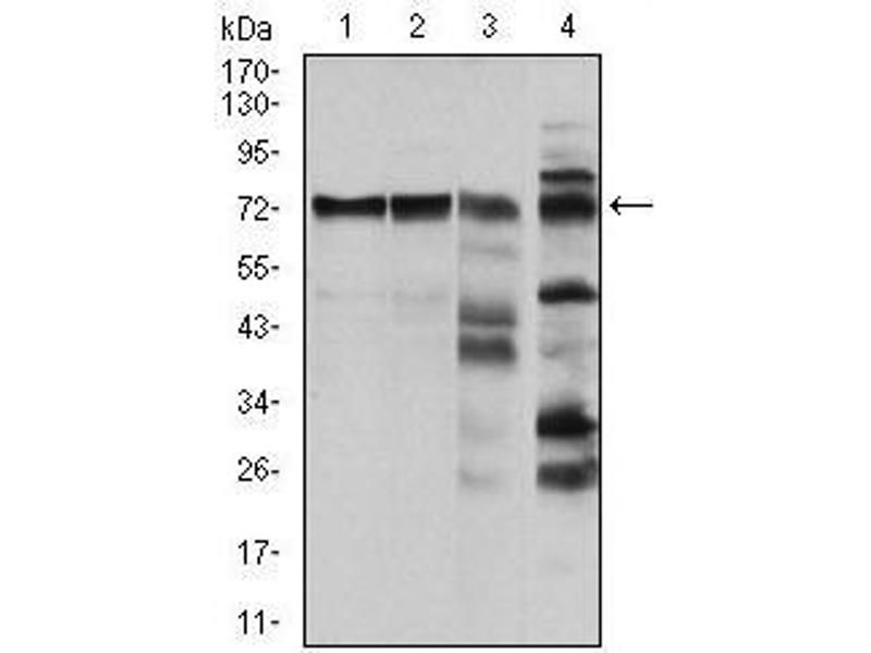 Western Blotting (WB) image for anti-V-Raf-1 Murine Leukemia Viral Oncogene Homolog 1 (RAF1) antibody (ABIN969559)
