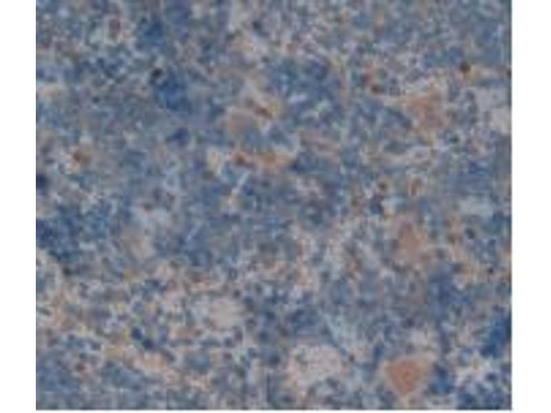 Immunohistochemistry (IHC) image for anti-Complement Factor H (CFH) (AA 975-1217) antibody (ABIN1858382)