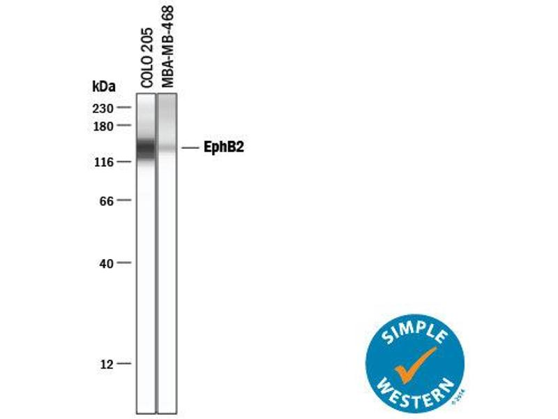 Simple Western (SimWes) image for anti-EPH Receptor B2 (EPHB2) (AA 27-548) antibody (ABIN4900040)