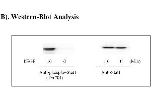 Image no. 4 for Signal Transducer and Activator of Transcription 1, 91kDa (STAT1) ELISA Kit (ABIN625231)