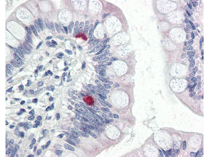 Immunohistochemistry (IHC) image for anti-Coatomer Protein Complex, Subunit alpha (COPA) (AA 1-19) antibody (ABIN337288)