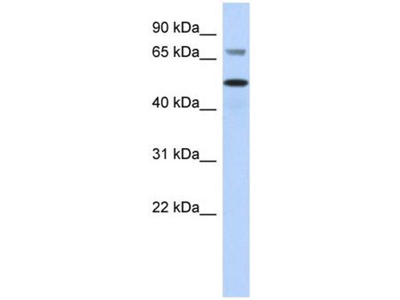 Western Blotting (WB) image for anti-V-Akt Murine Thymoma Viral Oncogene Homolog 2 (AKT2) (Middle Region) antibody (ABIN2779323)