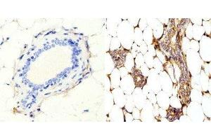 Immunohistochemistry (Paraffin-embedded Sections) (IHC (p)) image for anti-Ras Homolog Gene Family, Member A (RHOA) antibody (ABIN4350390)