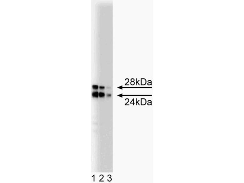 Western Blotting (WB) image for anti-COMT antibody (Catechol-O-Methyltransferase) (AA 26-141) (ABIN968704)