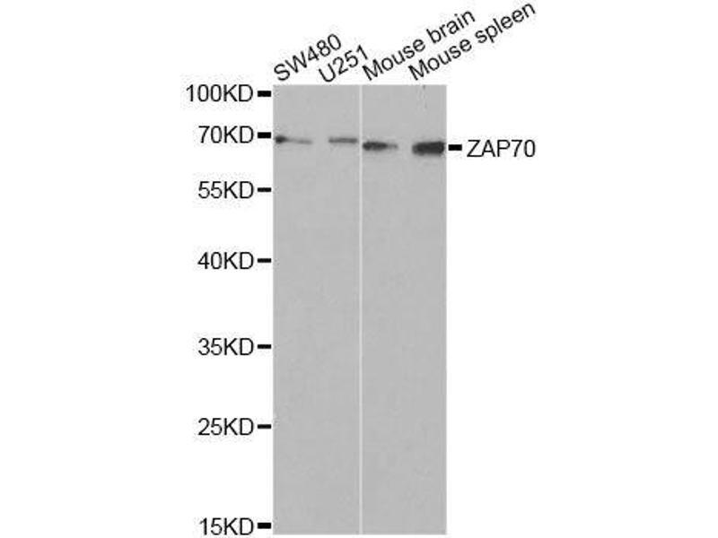 Western Blotting (WB) image for anti-zeta-Chain (TCR) Associated Protein Kinase 70kDa (ZAP70) antibody (ABIN3023184)