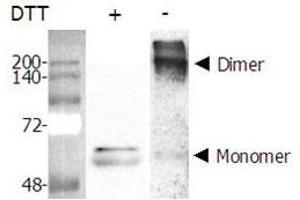 Western Blotting (WB) image for Nicotinamide phosphoribosyltransferase (NAMPT) (AA 1-491) (Active) protein (His tag) (ABIN1344091)