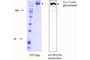 Image no. 2 for SARS-CoV-2 Spike (Trimer) protein (rho-1D4 tag) (ABIN6952670)