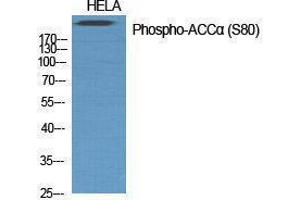Image no. 1 for anti-Acetyl-CoA Carboxylase alpha (ACACA) (pSer80) antibody (ABIN3182481)