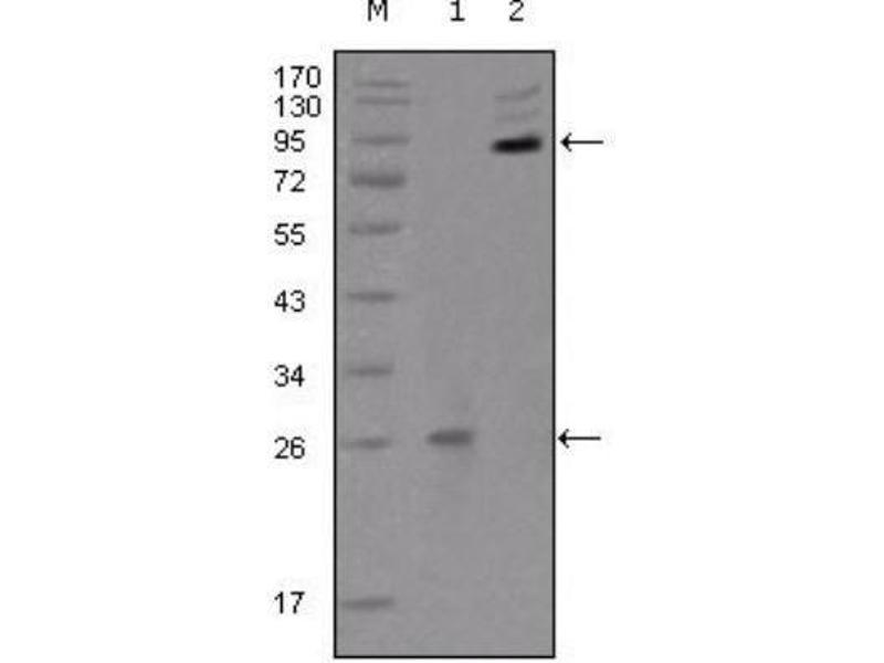 Western Blotting (WB) image for anti-EPH Receptor B2 (EPHB2) antibody (ABIN4308695)