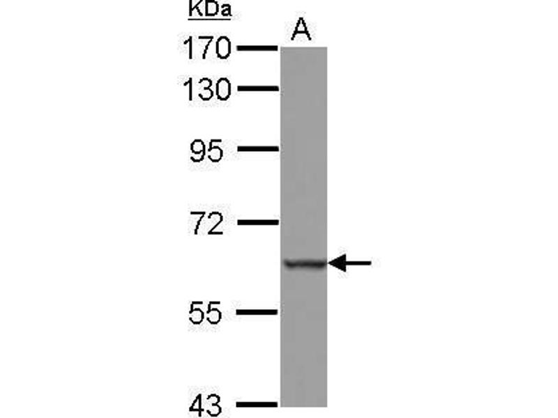 Western Blotting (WB) image for anti-Mediterranean Fever (MEFV) (Internal Region) antibody (ABIN2856294)