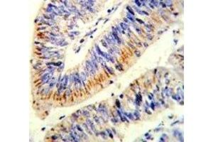 Image no. 3 for anti-Nuclear Factor-KB P65 (NFkBP65) (AA 10-37) antibody (ABIN3029810)