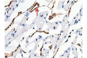 Image no. 1 for anti-Melanoma Cell Adhesion Molecule (MCAM) (AA 1-559), (Extracellular Domain) antibody (ABIN1995711)