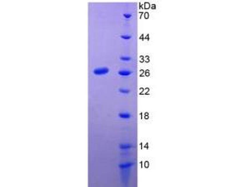 Prolactin (PRL) ELISA Kit (3)