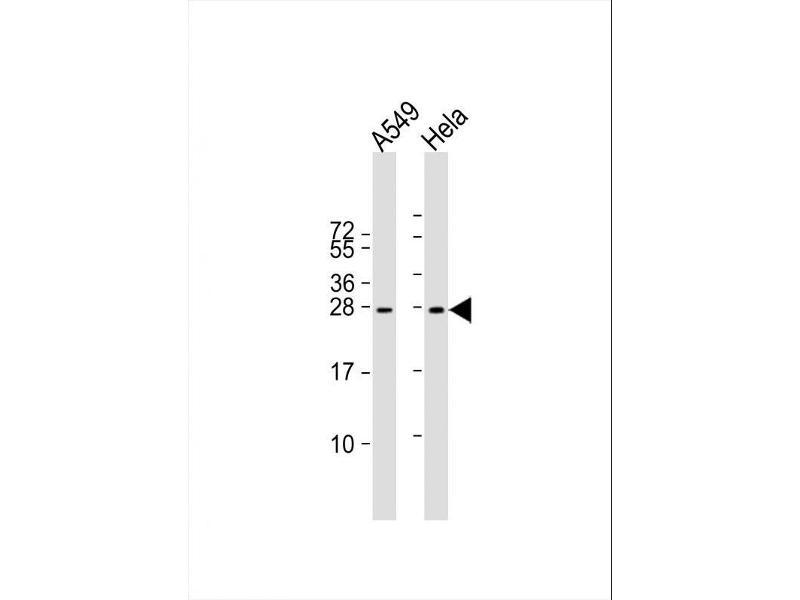Western Blotting (WB) image for anti-Insulin-Like Growth Factor 2 (IGF2) (AA 39-68), (Arg54), (Center) antibody (ABIN650616)