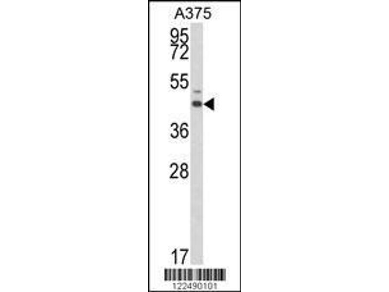 Western Blotting (WB) image for anti-Estrogen-Related Receptor alpha (ESRRA) (AA 131-159), (Center) antibody (ABIN652575)